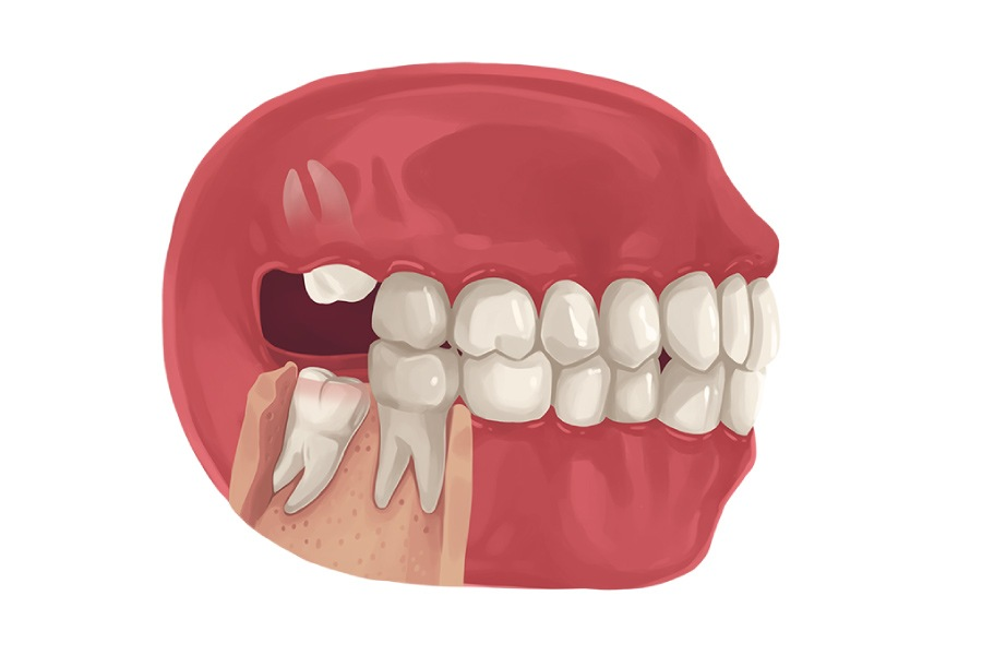 Model of a wisdom tooth growing in crooked.