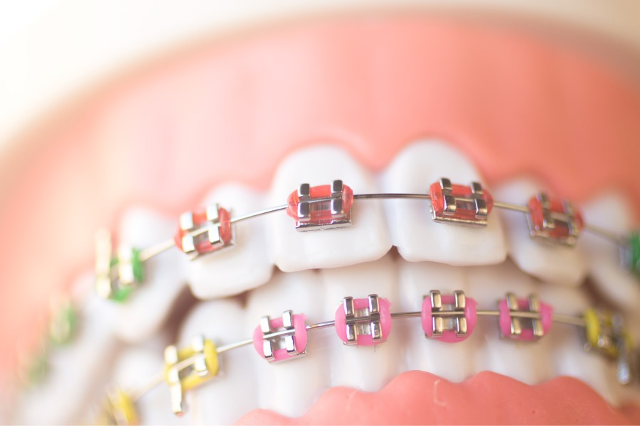 Close-up of a mouth with braces and colored elastics.